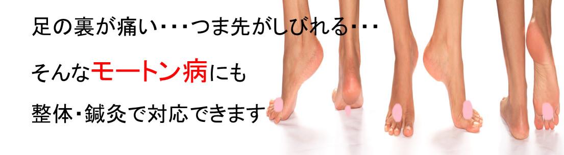 足の裏が痛い、つま先がしびれる、そんなモートン病にも整体・鍼灸治療で改善します